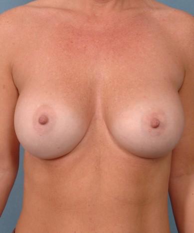 Breast Augmentation – Silicone