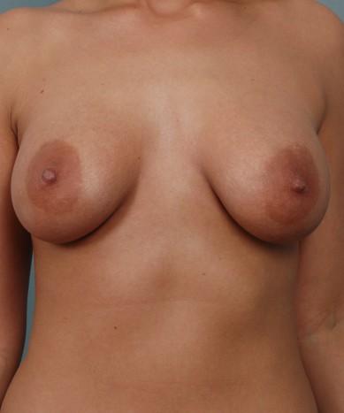 Asymmetric Breasts