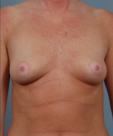 Breast Augmentation – Saline Implants