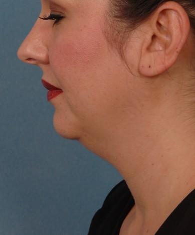 VASER 4D liposuction of the neck