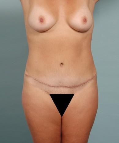 4D VASER Lipo-Abdominoplasty, fat transfer to buttocks