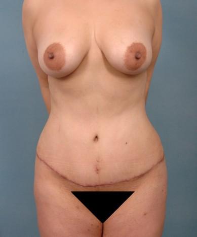 Vaser 4D Lipo-Abdominoplasty,  fat transfer to buttocks