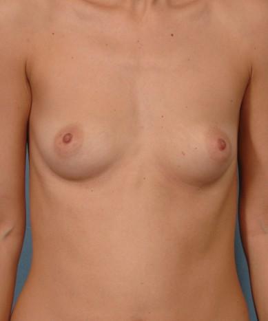 "Breast augmentation – Silicone ""Gummy bear"" implants"