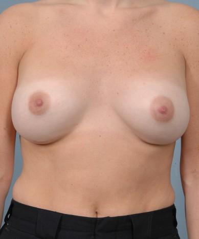Breast Enhancement – Saline Implants