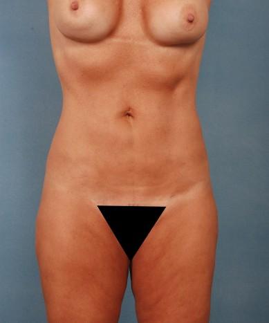VASER 4D Liposuction, fat transfer to buttocks