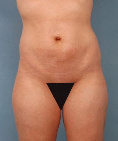 VASER 4D Lipo and VASER Smooth (cellulite treatment)