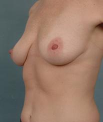 Breast Augmentation | Breast Enhancement | Long Island