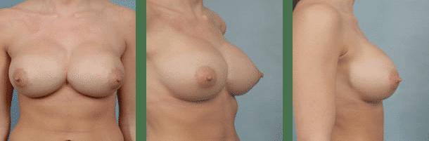 Synmastia Correction | Breast Correction | Long Island | Suffolk County