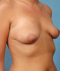 Silicone Gel Breast Implants Long Island