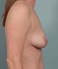 Breast Augmentation Correction | Long Island