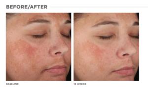 Lytera Skin Brightening Complex Long Island