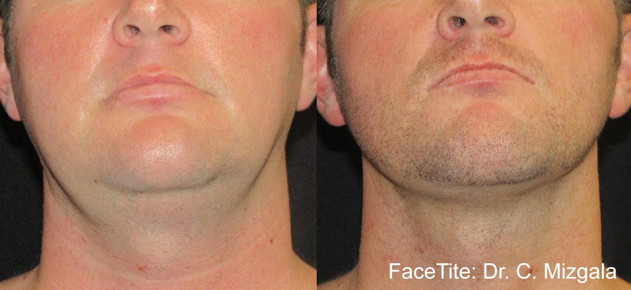 facetite cm 1a neck