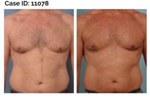 Male Breast Reduction Long Island | Gynecomastia