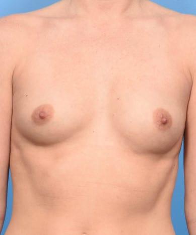 "Breast Enhancement With Silicone – Allergan 410 Teardrop Shaped ""Gummy Bear"" Implants"