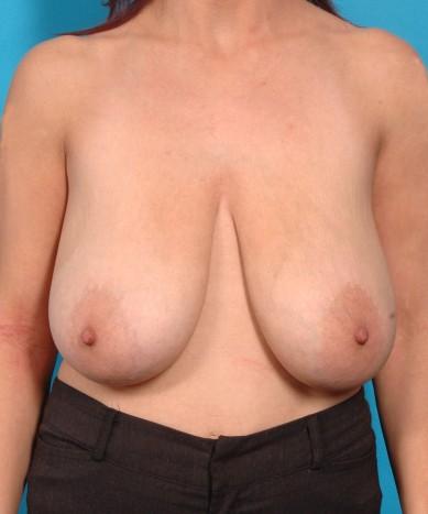 "Breast reduction – Female (""Lollipop technique"")"