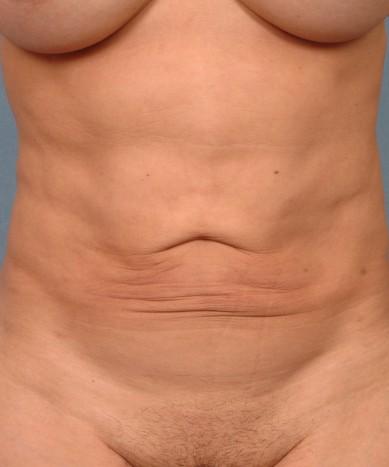 ThermiTight of the abdomen