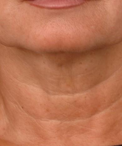 ThermiTight – neck