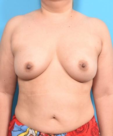 Breast Augmentation – Silicone Round Gummy Implants