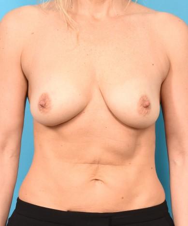 Breast Augmentation – Silicone Round Non-Gummy Implants