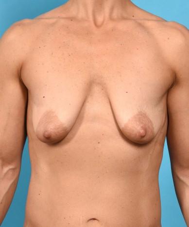 Breast Augmentation – Mastopexy