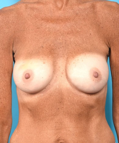 Breast Augmentation – Revision