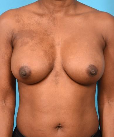 Breast Augmentation – Allergan 410 Gummy Bear