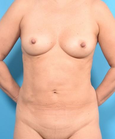 VASER 4D Liposuction and BodyTite
