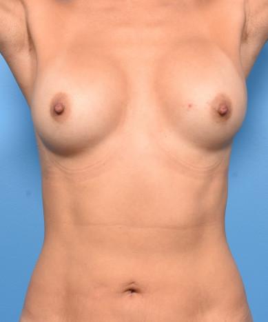 VASER 4D Liposuction of the Abdomen and Flanks