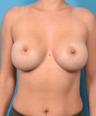 Breast Augmentation – Round Non-Gummy Implants
