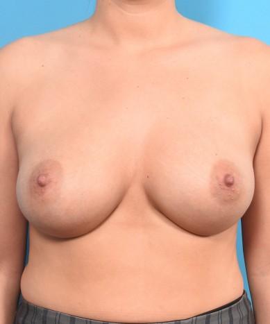 Breast Augmentation – Silicone Round Gummy Bear