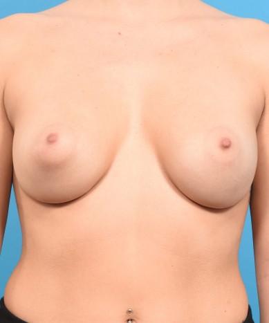 Breast Enhancement – Allergan 410 Gummy Bear Implants: Asymmetry And Tubular Breast Deformity