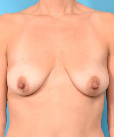 Breast Augmentation – Silicone Round Non-Gummy Implants & Lift (Mastopexy)