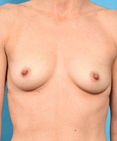Breast Augmentation – Silicone Round Non-Gummy