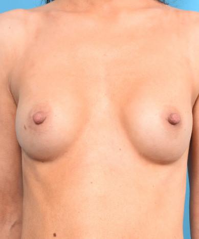 Breast Augmentation – Silicone Allergan 410 teardrop