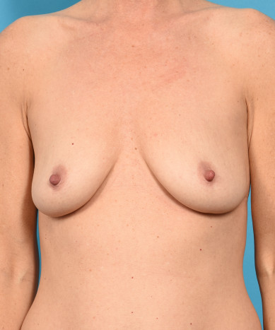 Breast Augmentation – Silicone Round Gummy Implant