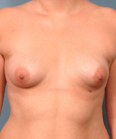 Correction of Tubular Breasts