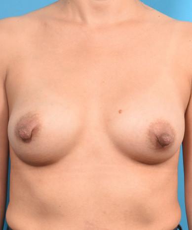 "Breast Augmentation – Silicone Round ""Gummy Bear"" Implant"