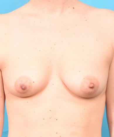 "Breast Augmentation – Silicone Round ""Gummy Bear"" Implants"
