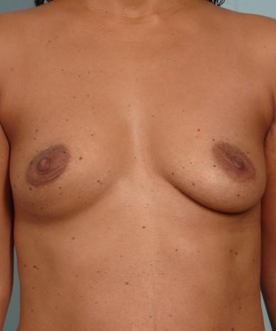 "Breast Augmentation – Silicone Round ""Non-Gummy"" Implants"
