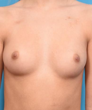 Breast Augmentation – Silicone Round Gummy