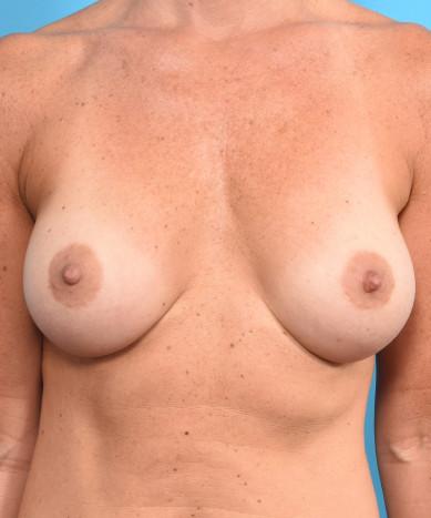 "Breast Augmentation – Silicone Round ""Gummy"" Implant"