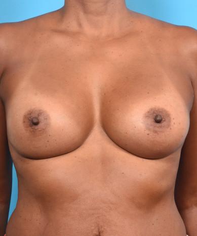 "Breast Augmentation – Silicone Round ""Gummy"" Implants"