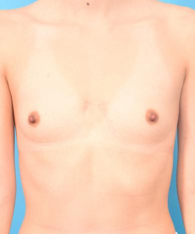 "Breast Augmentation – Silicone 410 Teardrop Shaped ""Gummy Bear"" Implant"