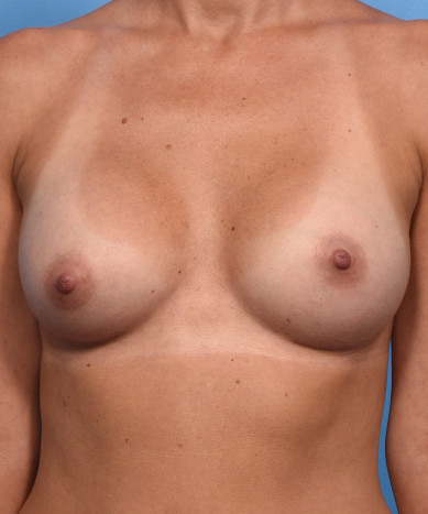 """Breast Enhancement With Silicone Round """"Gummy"""" Implants"""