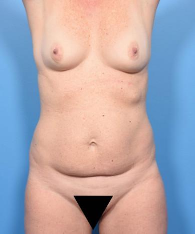 VASER 4D Liposuction