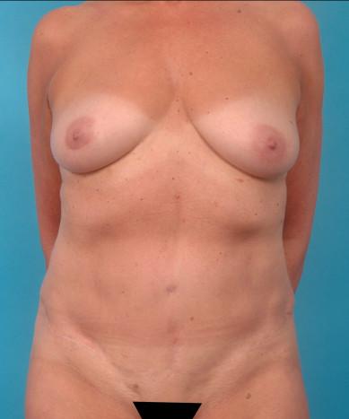 VASER 4D Liposuction And Lipoabdominoplasty