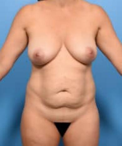 VASER 4D Liposuction And Lipoabdominoplasty – 3 month result