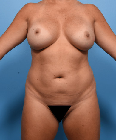 VASER 4D Liposuction And Lipoabdominoplasty, Fat transfer to Buttocks and Hips