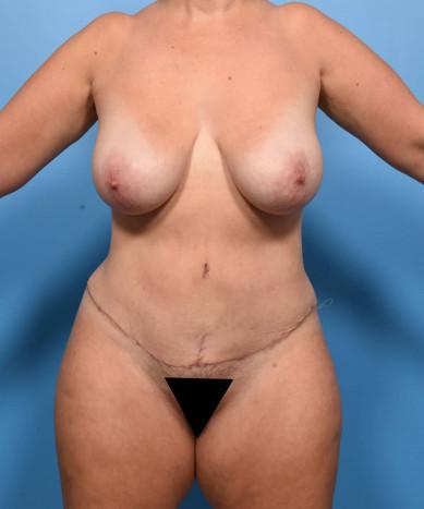 VASER 4D Lipoabdominoplasty and VASER flanks