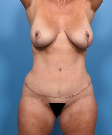 VASER 4D lipo-abdominoplasty, VASER lipo of flanks, inner/outer thighs, bodytite of inner thighs, fat transfer to buttocks and hips